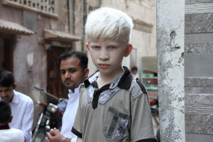 Albinismus, nemoc pigmentu
