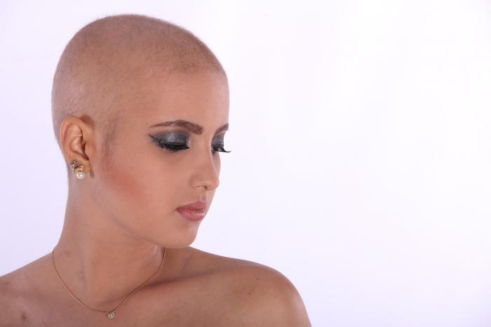 Proč plešatí i ženy? Může za to alopecie