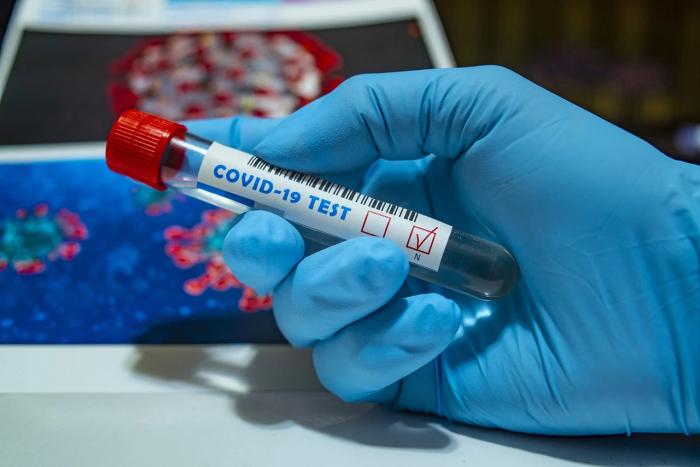 Kdy proplácí testy na COVID-19 zdravotní pojišťovna?